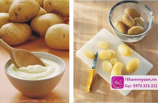 Giải pháp trị mụn cám từ khoai tây