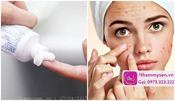 Cách trị mụn bọc nhanh nhất tại nhà bằng kem đánh răng