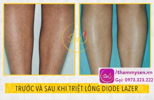 kết quả triệt lông chân diode laser