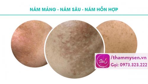 Phân biệt các loại nám da thường gặp và cách khắc phục hiệu quả nhất