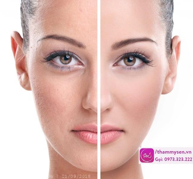 các phương pháp trị nám da mặt