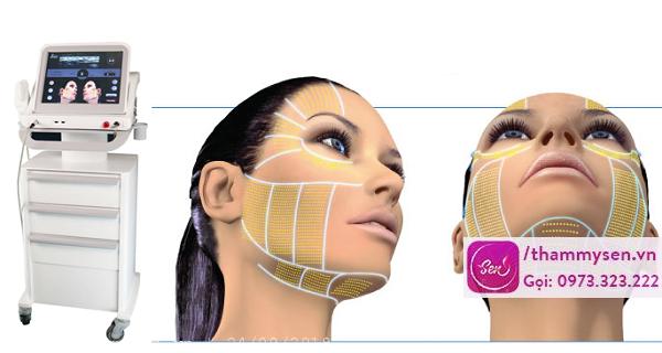 công nghệ nâng cơ mặt