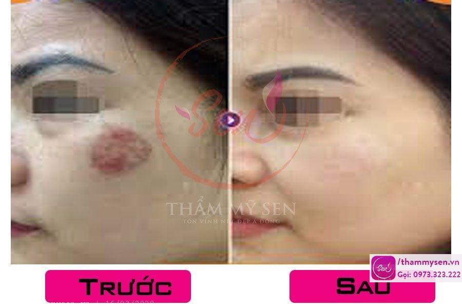 Kết quả sau điều trị sẹo lồi bằng laser của khách hàng