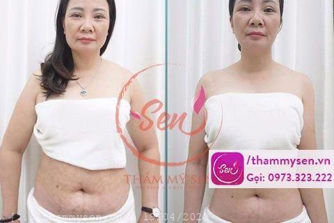 Khách hàng sau khi sử dụng liệu trình giảm béo với công nghệ Cavi Lipo