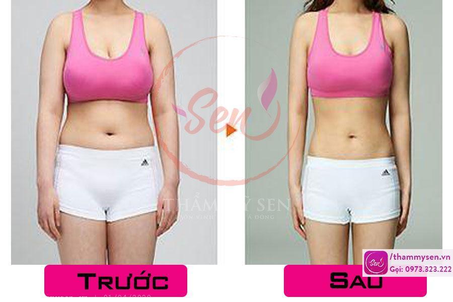 Khách hàng sử dụng liệu trình giảm mỡ bụng sau sinh