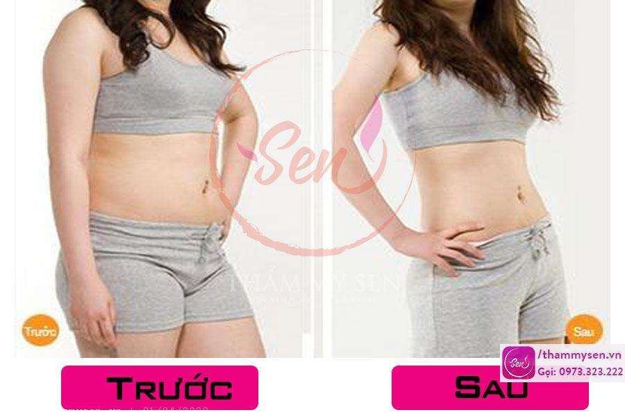 Hình ảnh trước và sau khi khách sử dụng liệu trình giảm béo bụng sau sinh