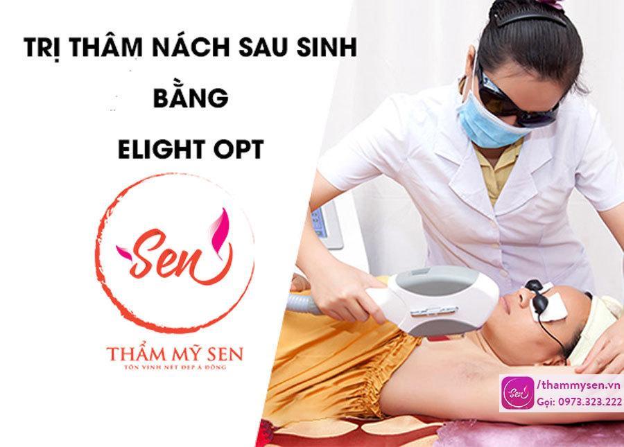 TRI-THAM-NACH-SAU-SINH-BANG-ELIGHT-OPT