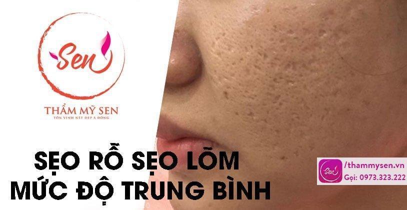cac-phuong-phap-dieu-tri-seo-ro-seo-lom-muc-do-trung-binh