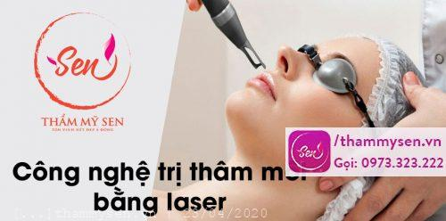 Trị thâm môi bằng laser