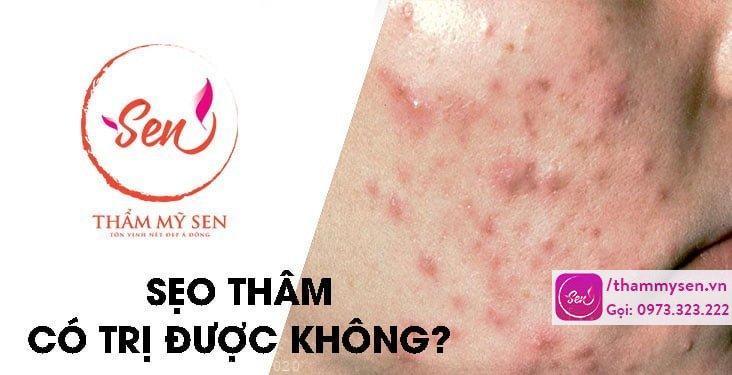 seo-tham-co-tri-duoc-khong