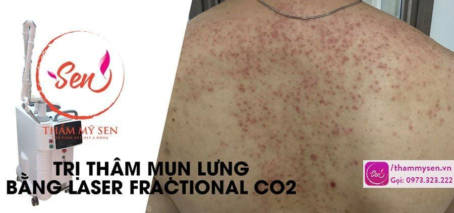tri-tham-mun-lung-bang-laser-fractional-co2.jpg