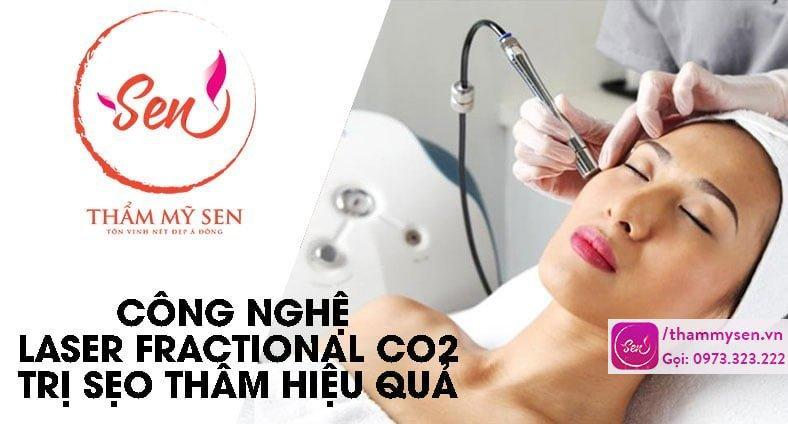 cong-nghe-laser-fractional-co2-tri-seo-tham