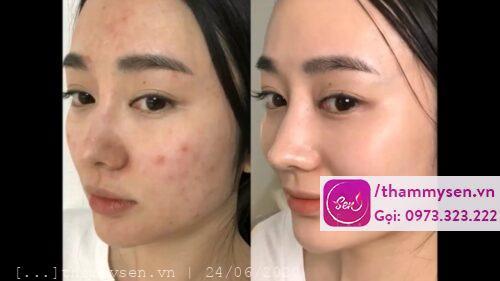 Chăm sóc Facial Aqua Plus, Thẩm mỹ Sen